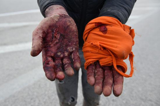 مهاجر من أفغانستان يظهر يديه التي أصيبت في محاولة لعبوره من تركيا إلى اليونان