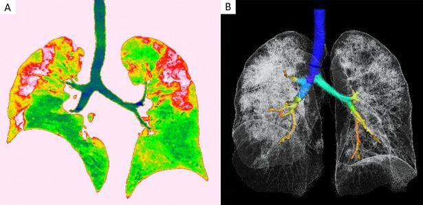 بقع على الرئة (باللون الأحمر ، الأيسر) وصورة ثلاثية الأبعاد للرئتين والقصبة الهوائية