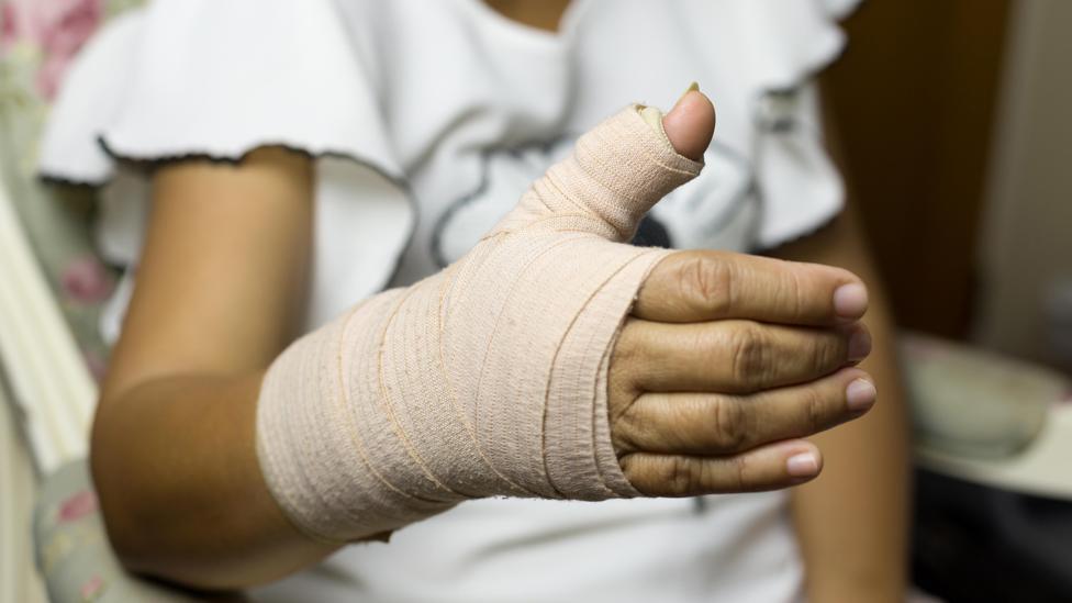 اعراض كسر العظام 3