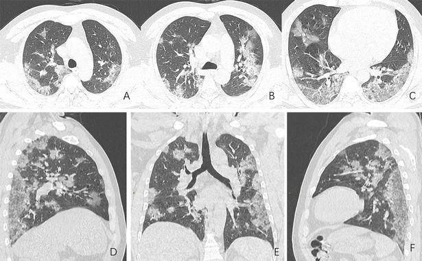 الأشعة تظهر مدى تضرر الرئة من كورونا