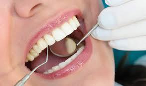 الاهتمام بصحة الفم