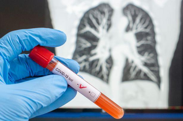 0_Coronavirus-diagnosed-x-ray-cat-tomography-CT-scan-negative-blood-test-for-Coronavirus