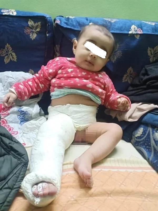 أثار تعذيب الطفلة
