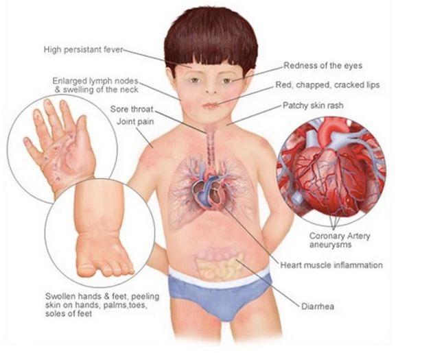 اعراض التهاب فى الاطفال