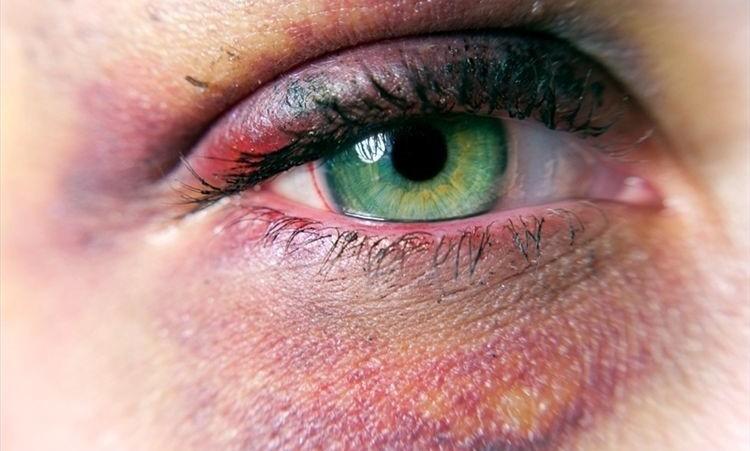 traumatismos-oculares-4-1-750x451