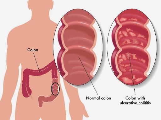 اعراض سرطان القولون في المرحلة الأخيرة منها تورم الساق