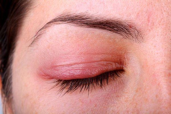 اسباب التهاب جفن العين 1