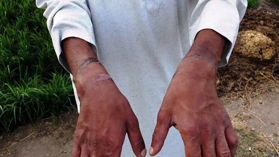 ضحية التعذيب (5)