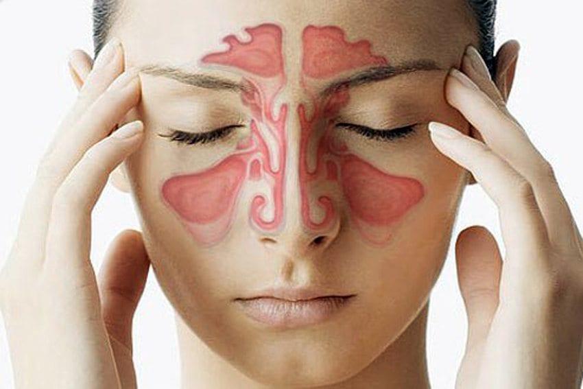 اعراض صداع الجيوب الانفية 3