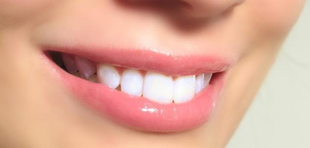 طرق تبيض الأسنان
