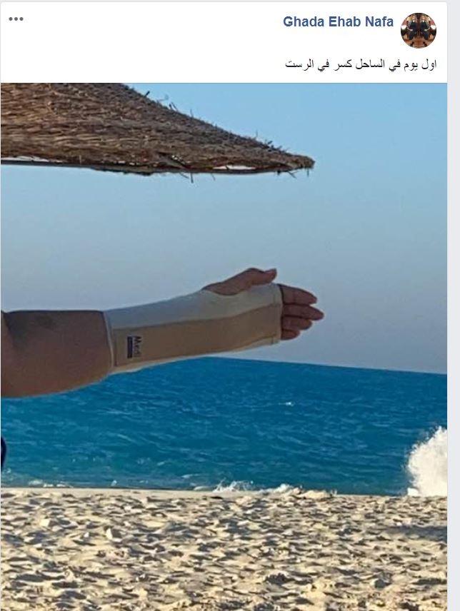 إصابة غادة نافع بـ كسر في ذراعها (1)