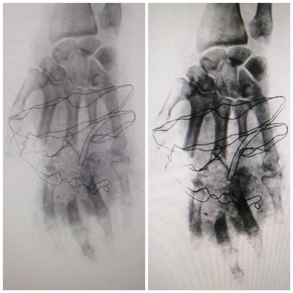 عملية جراحية لعلاج مواطن مصاب بتهتك باليد اليسرى  (3)