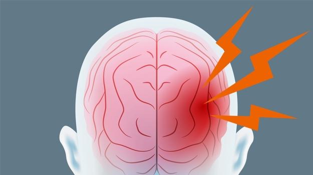 اعراض ارتجاج المخ 1