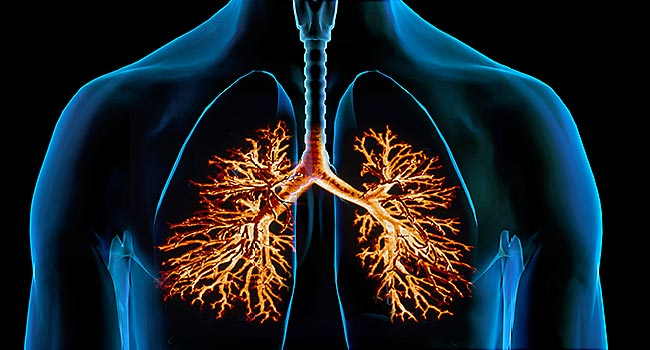 650x350_a_visual_overview_of_bronchitis_slideshow