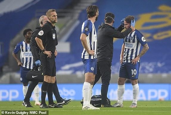 اصابة قوية للاعب برايتون في الرأس