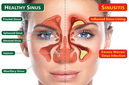 اعراض التهاب الجيوب الانفية 4