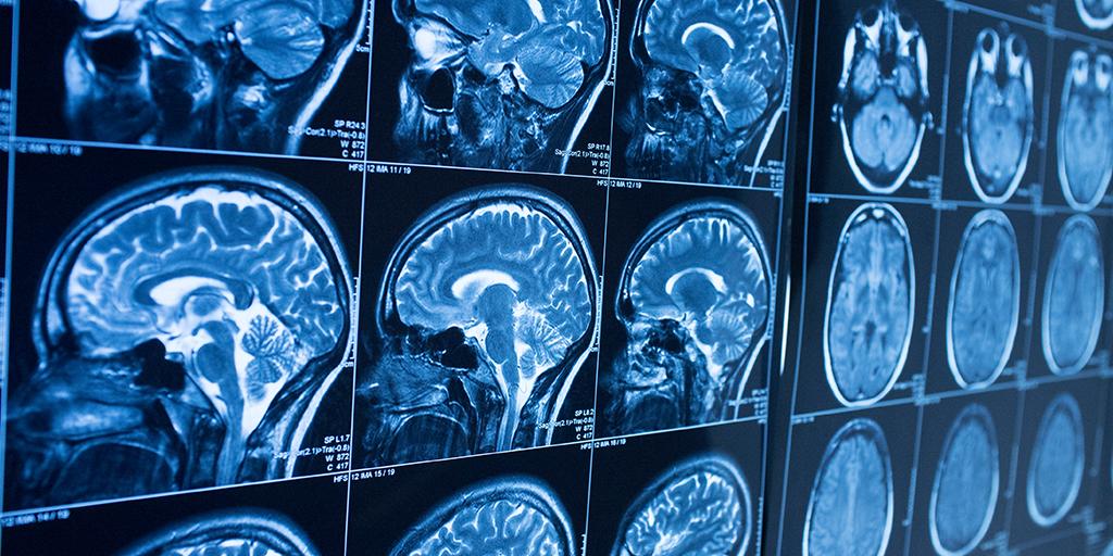 stroke-diagnosis