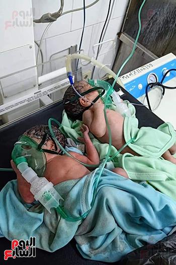 مصابة بكورونا تنجب 3 توائم (3)