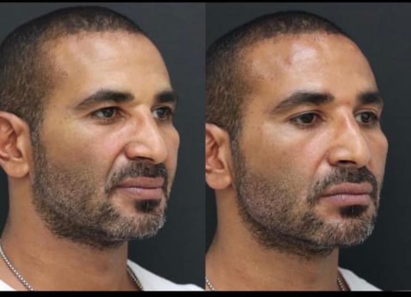 أحمد سعد يخضع لعملية تجميل