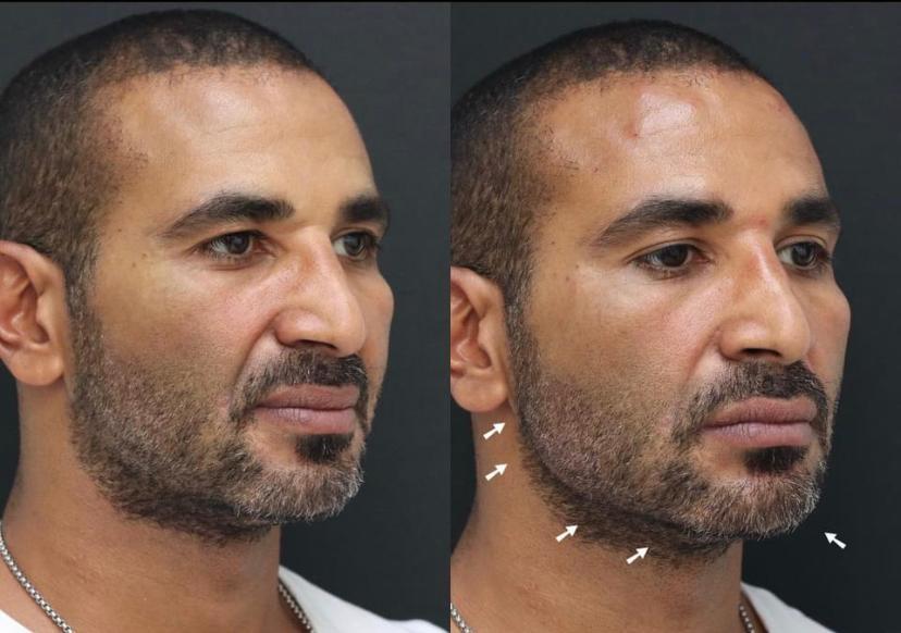 صورتين للفنان أحمد سعد قبل وبعد عملية التجميل