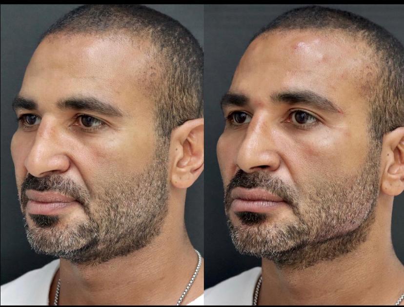 أحمد سعد قبل وبعد العملية
