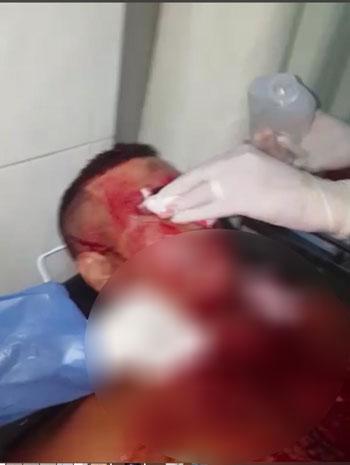 59923-إسعاف-المجنى-عليه-بالمستشفى
