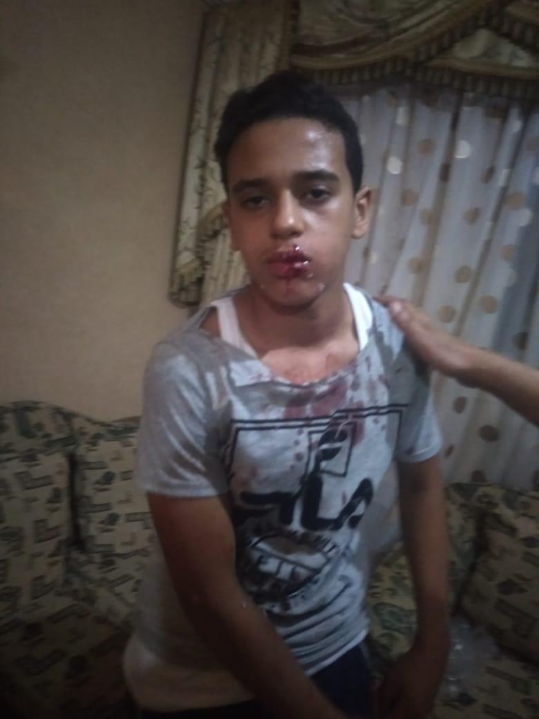 الطفل محمد المجنى عليه