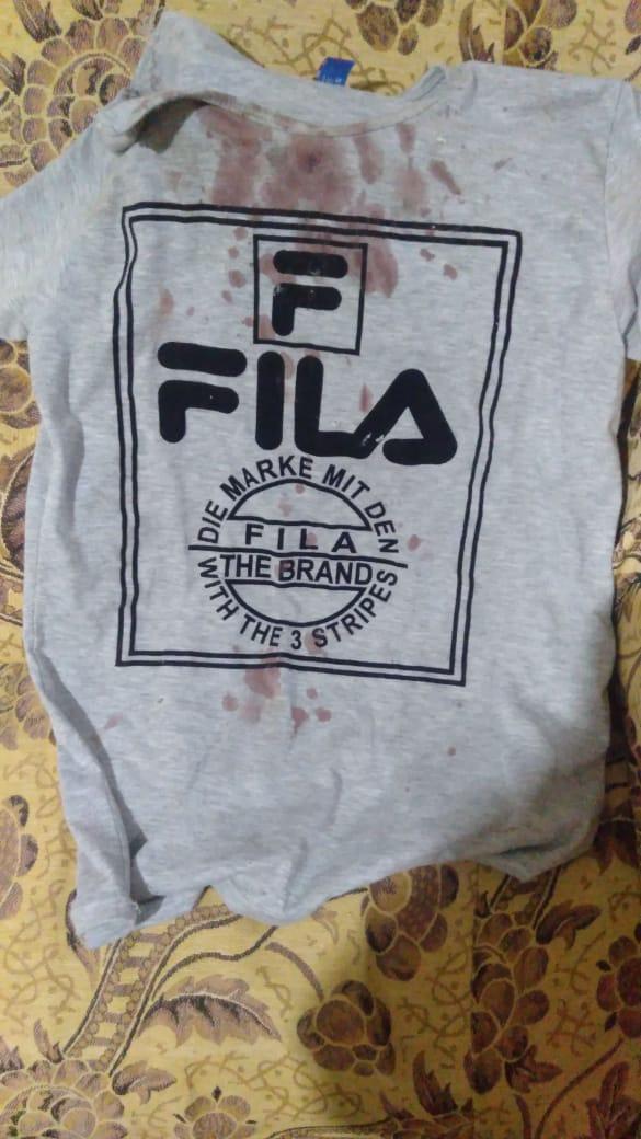 ملابس المجني عليه ملطخة بالدماء (1)