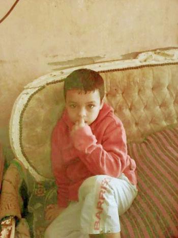 الطفل-المحروق-ضحية-التنمر-فى-المنوفية-(9)