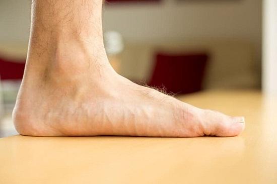 رجل ذو قدم كبيرة