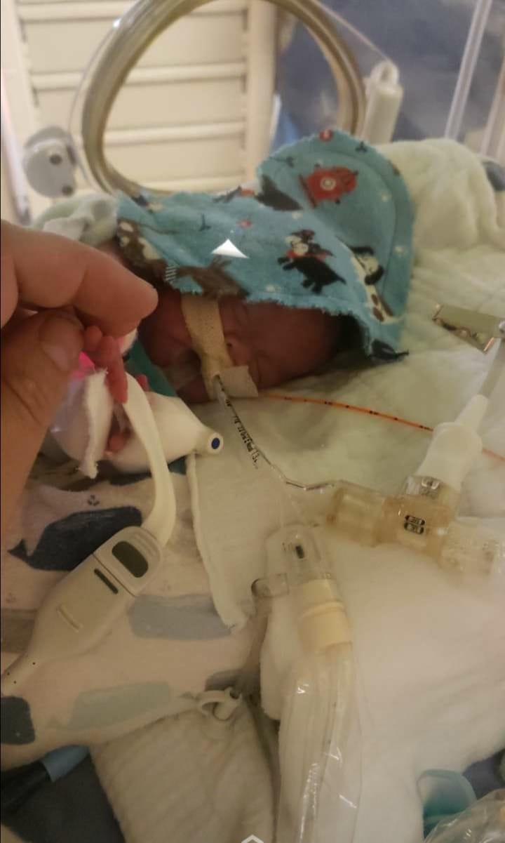 الرضيع على اجهزة التنفس الصناعي