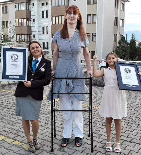 جيلجي  اطول امرأة فى العالم