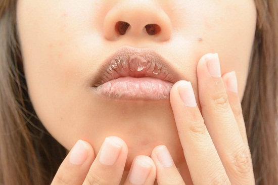 Natural recipes to moisturize dry lips