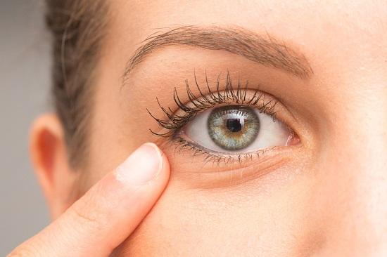 وصفات للتخلص من تجاعيد تحت العين