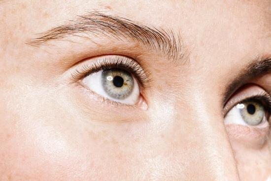 وصفات طبيعية للتخلص من تجاعيد تحت العين