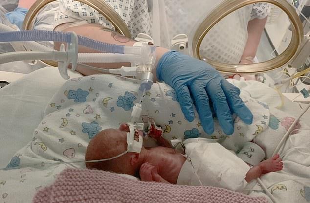 رضيعة وزنها  490 جرام أصغر من حجم يد والدتها تنجو بعد ولادتها (3)
