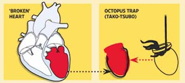 شكل القلب المنكسر