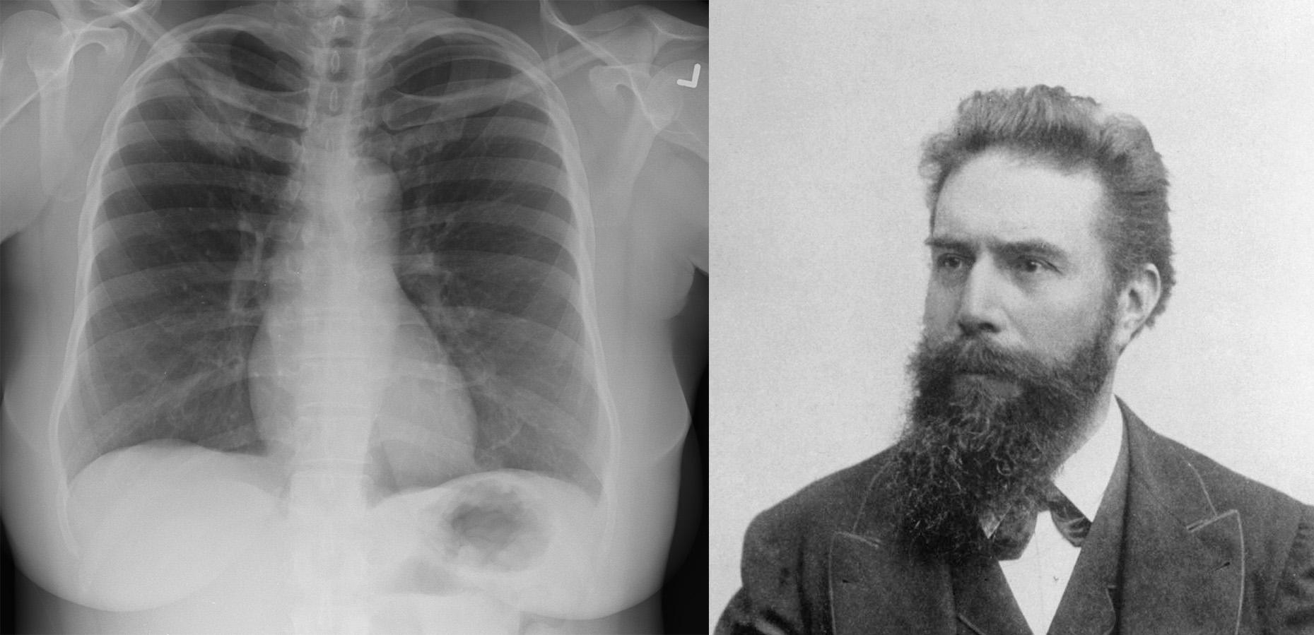 فيلهلم كونراد رونتجن وصورة لاشعة سينية