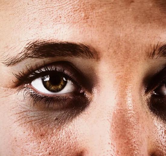 وصفات طبيعية لعلاج الهالات السوداء وانتفاخ العيون (1)