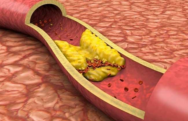 ارتفاع مستويات الكوليسترول في الدم