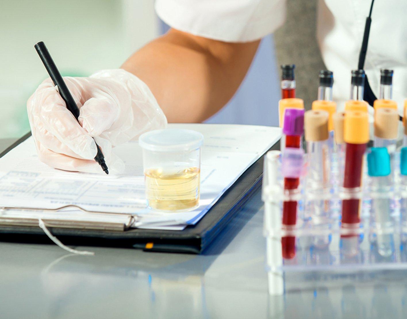osmolality-urine-test-708x556-2x