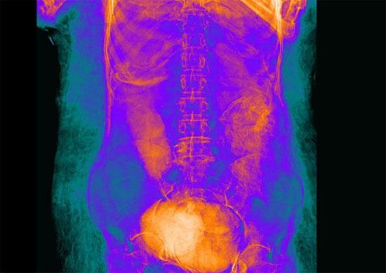 اكتشاف المومياء الحامل (6)
