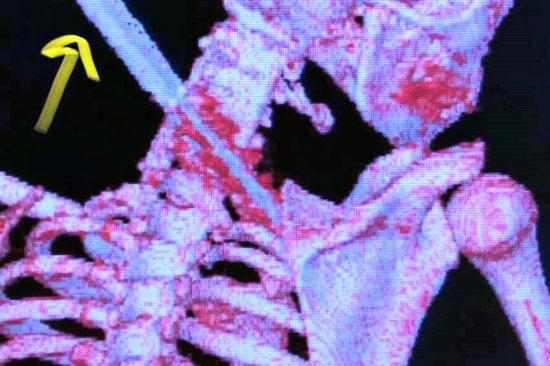 فريق-جراحة-العظام-بالفيوم-ينجح-فى-استخراج-آلة-حادة-بعنق-طفل-بسبب-مشاجرة-(4)