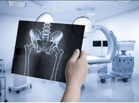العظام