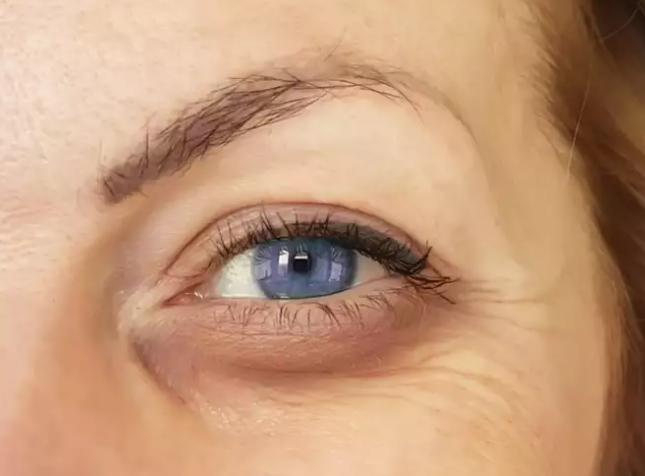 أعين متورمة