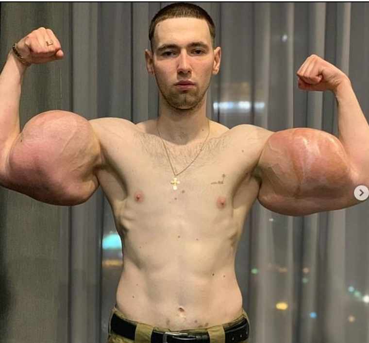 The man and the fake muscles
