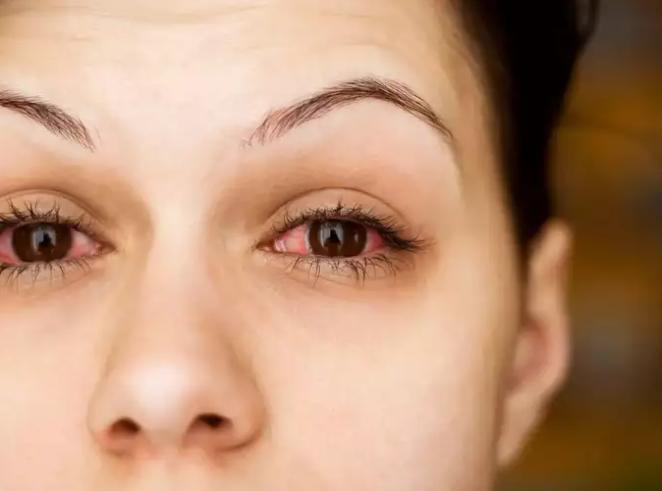eye lens darkening