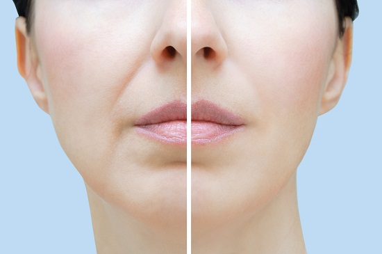 Natural ways to get rid of wrinkles around the mouth
