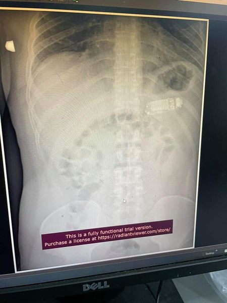X-ray phone pictures