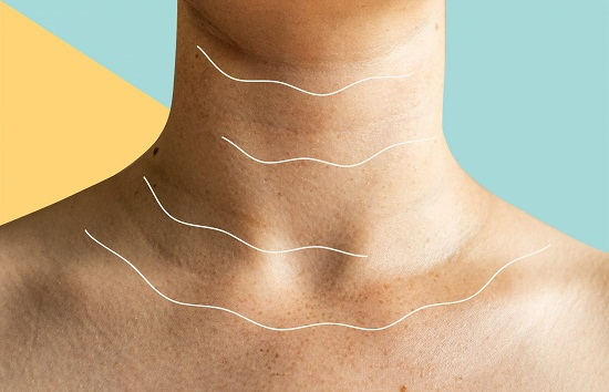 Natural ways to get rid of neck wrinkles